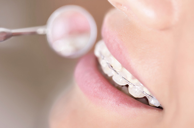 Orthodontics - Dr. Maria Avis - Akoya Dental Boutique