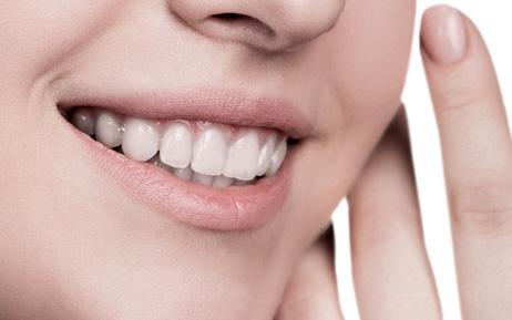 Dental Veneers - Akoya Dental Boutique