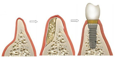 Bone Grafting - Dr. Maria Avis - Akoya Dental Boutique