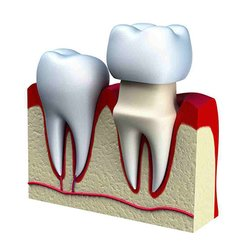 How Dental Crowns work